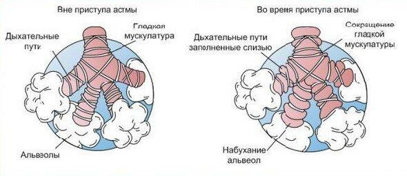 Астматический кашель — симптомы и лечение