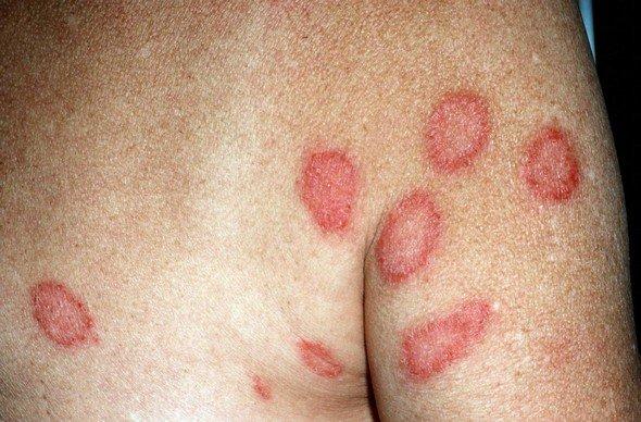 Парапсориаз — симптомы и лечение