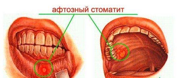 Афтозный стоматит — симптомы и лечение