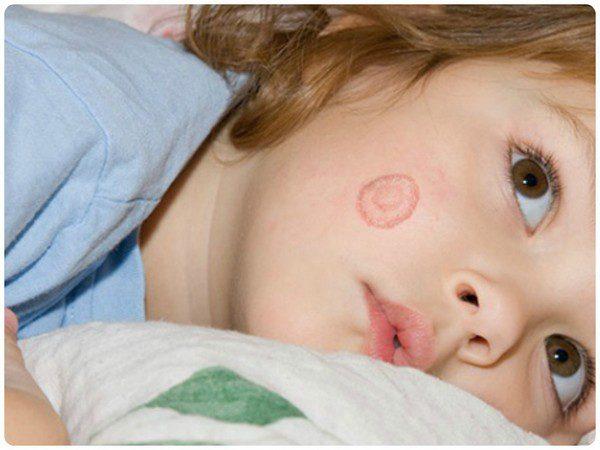 Лишай у детей - симптомы и лечение, фото и видео.