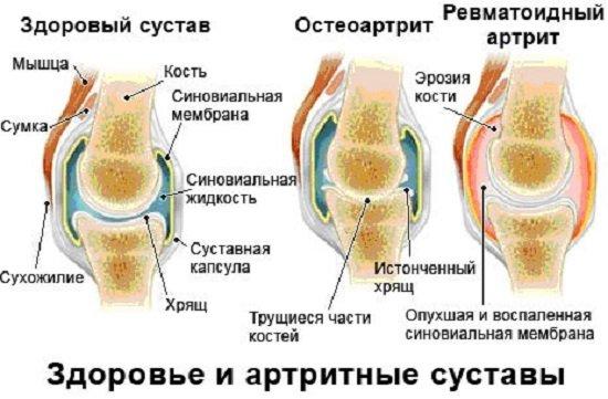 Остеоартроз — симптомы и лечение