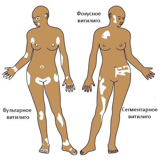 Витилиго — симптомы и лечение
