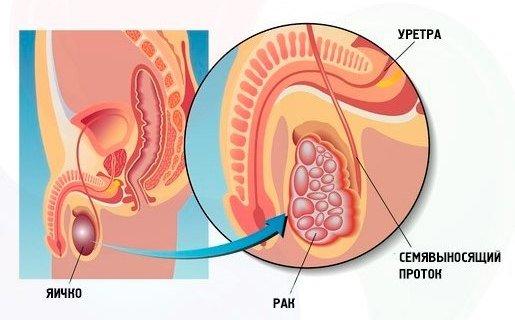 Рак яичка — симптомы и лечение