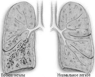Бронхоэктатическая болезнь — симптомы и лечение