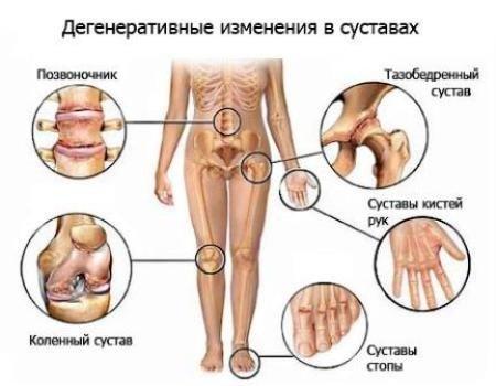 Полиартроз — симптомы и лечение