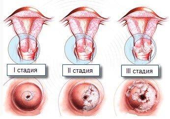 Дисплазия шейки матки — симптомы и лечение