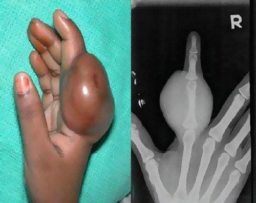 Саркома Юинга — симптомы и лечение