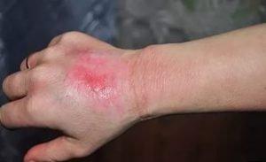 Эффективные способы восстановления тканей после получения ожогов