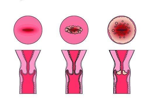 Эрозия шейки матки: когда ее нужно лечить?
