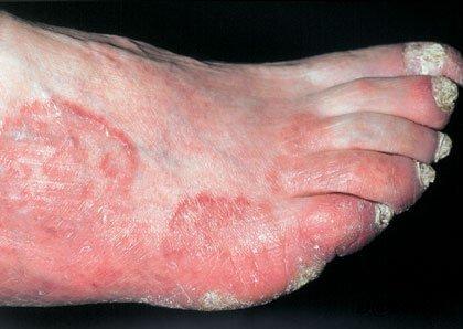 Рубромикоз (руброфития) — симптомы и лечение