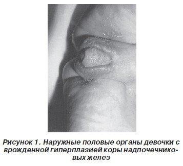 Гиперплазия коры надпочечников — симптомы и лечение