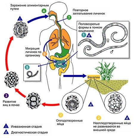 Аскариды — симптомы и лечение
