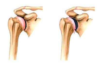 Артроз плечевого сустава — симптомы и лечение