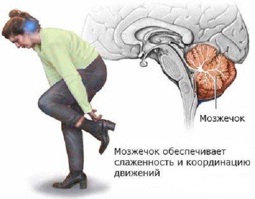 Мозжечковая атаксия — симптомы и лечение