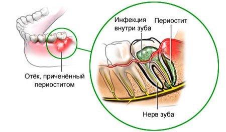 Периостит флюс — симптомы и лечение