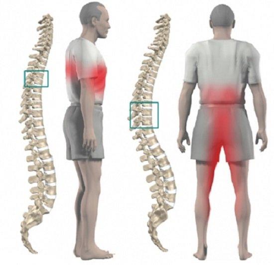 Грудной остеохондроз — симптомы и лечение