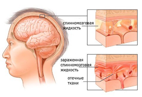 Серозный менингит — симптомы и лечение