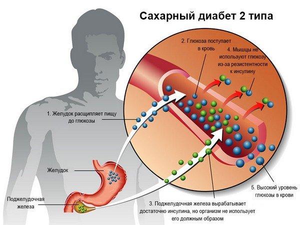 Сахарный диабет 2 типа — симптомы и лечение