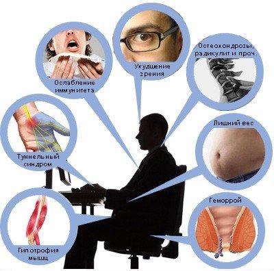 Гиподинамия — симптомы и лечение