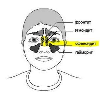 Сфеноидит — симптомы и лечение