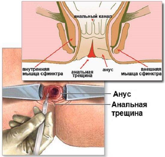 Трещина прямой кишки — симптомы и лечение