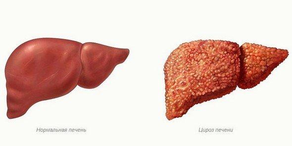 Алкогольный цирроз печени — симптомы и лечение