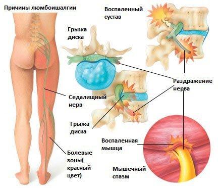 Люмбоишиалгия — симптомы и лечение