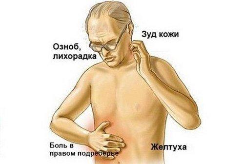 Опухоль поджелудочной железы — симптомы и лечение