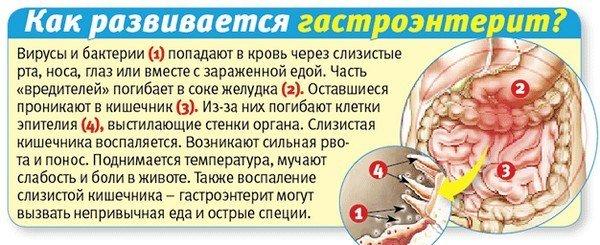 Острый гастроэнтерит — симптомы и лечение