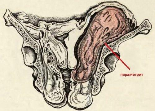 Параметрит — симптомы и лечение