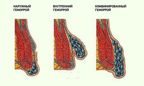 Геморрой у мужчин — симптомы и лечение, фото и видео