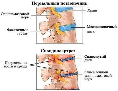 Спондилоартроз шейного отдела — симптомы и лечение