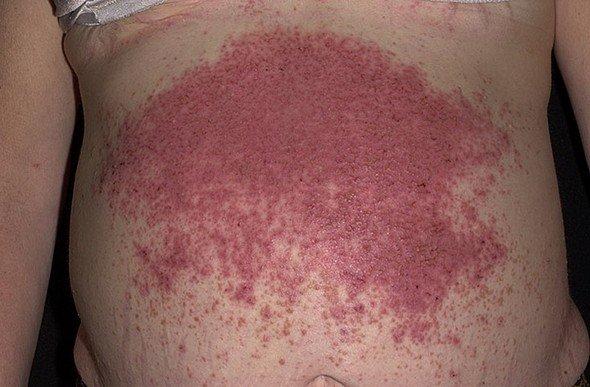 Герпетиформный дерматит Дюринга — симптомы и лечение