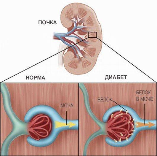 Диабетическая нефропатия — симптомы и лечение