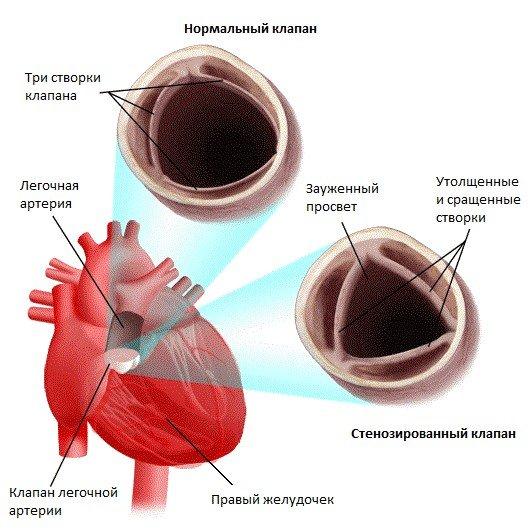 Стеноз легочной артерии — симптомы и лечение