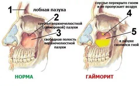Верхнечелюстной синусит — симптомы и лечение