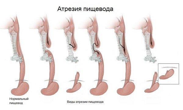 Атрезия пищевода — симптомы и лечение, фото и видео