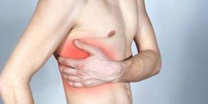 Лечение народными средствами грудной, межреберной невралгии