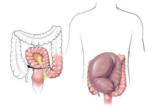 Долихосигма кишечника — симптомы и лечение