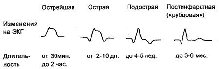 Инфаркт миокарда - что это такое его последствия и симптомы