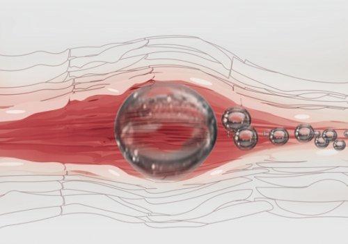 Эмболия — симптомы и лечение