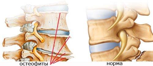 Спондилез грудного отдела — симптомы и лечение