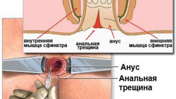 Анальная трещина — симптомы и лечение