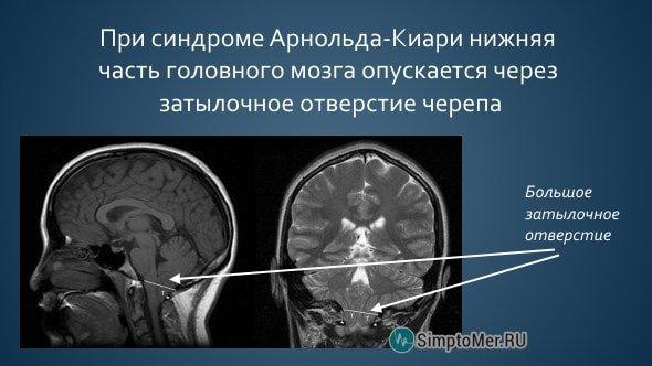 Синдром аномалия Арнольда Киари — симптомы и лечение