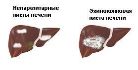 Эхинококкоз — симптомы и лечение