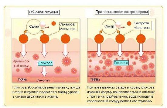 Сахарный диабет — симптомы и лечение