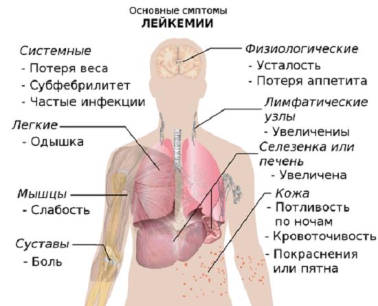 Лейкемия — симптомы и лечение