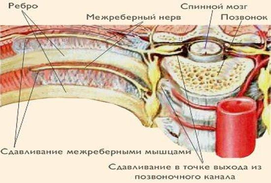 Межреберная невралгия — симптомы и лечение