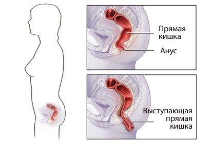 Выпадение прямой кишки — симптомы и лечение