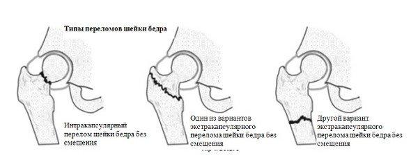 Перелом шейки бедра — симптомы и лечение